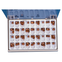 8454000 Gold Anodized Crowns Molar Crown Kit, 942301